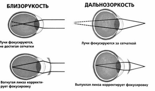 ж) Гигиена зрительного
